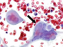 Herpes Simplex Virus istologico